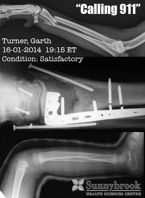 Garth-Broken-Leg-January2014