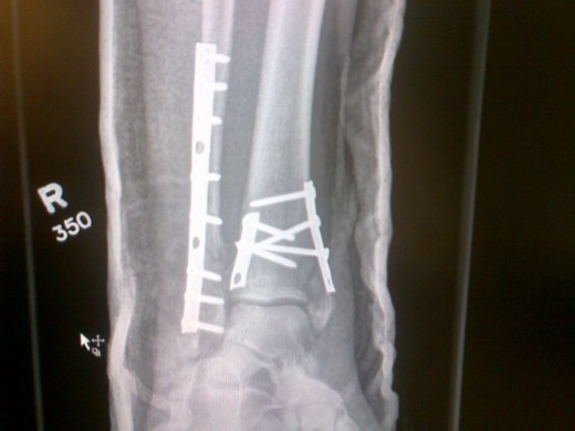 Garth Turner Ankle X-ray 1 modified